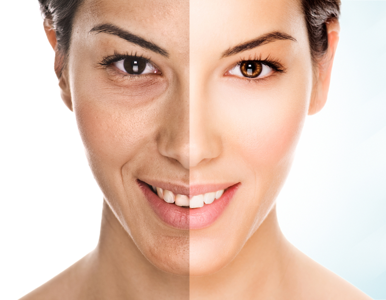 What are the main signs of aging